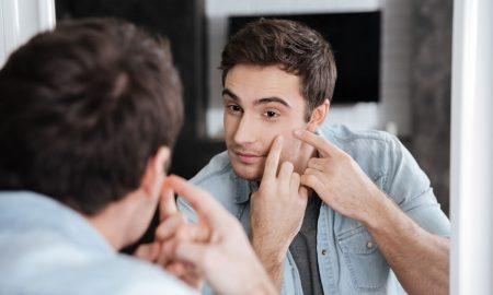 causas-del-acne